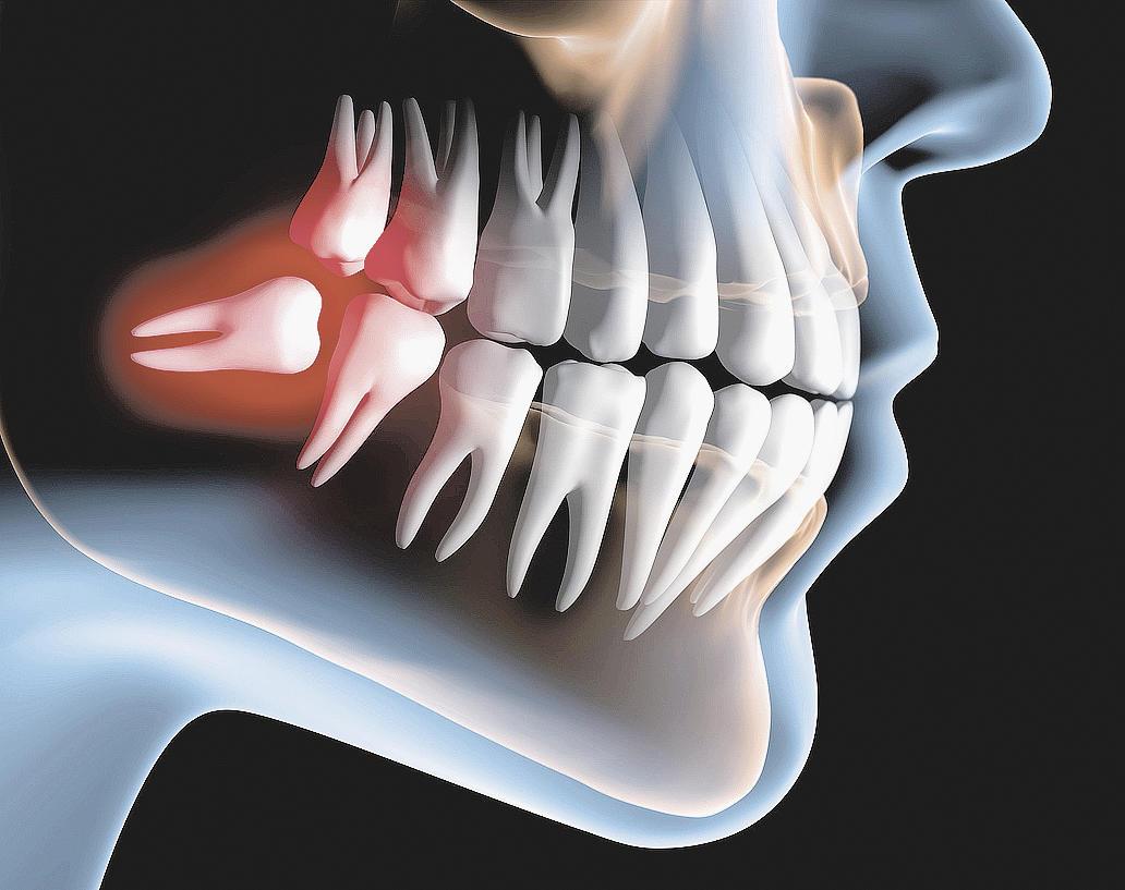 Saiba mais sobre os Dentes do siso