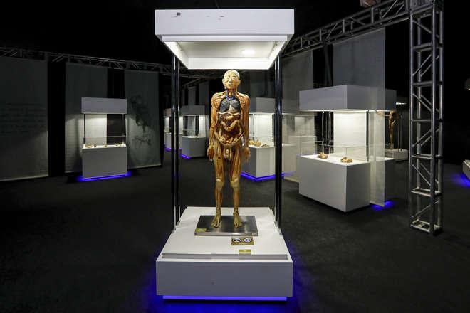 Exposição conta com um acervo composto por nove corpos reais - KIKO SIERICH